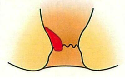 痔核硬化療法